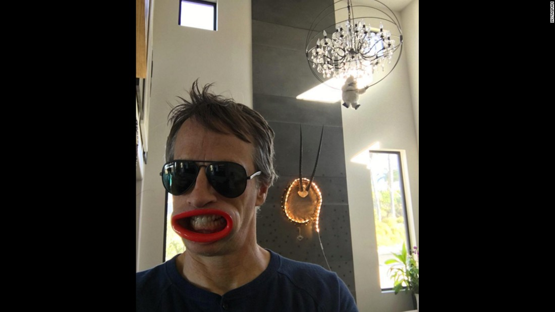 "Skateboarding legend Tony Hawk takes a silly selfie on Christmas Day. ""Thanks @catherine_o for my annual lip augmentation,"" <a href=""https://www.instagram.com/p/_uWUTurHpc/?taken-by=tonyhawk"" target=""_blank"">Hawk joked on Instagram,</a> referring to his wife."