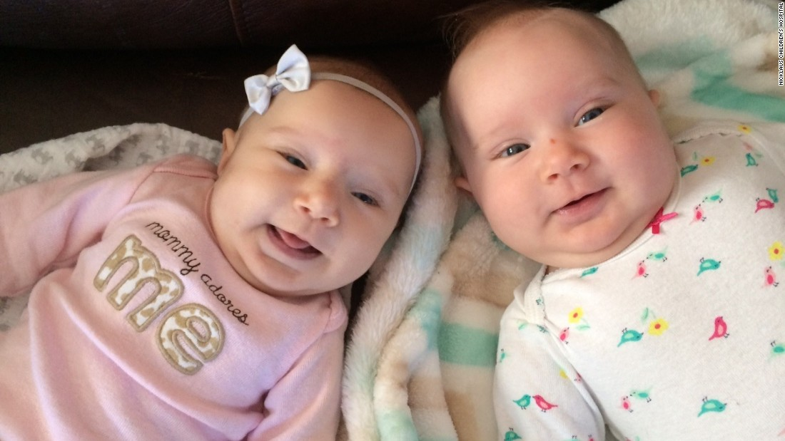 Teegan, left, and Riley Lexcen were born in August.