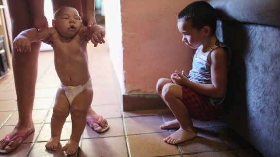 David Henrique Ferreira, a 5-month-old who has microcephaly, is watched by his brother in Recife on January 25.