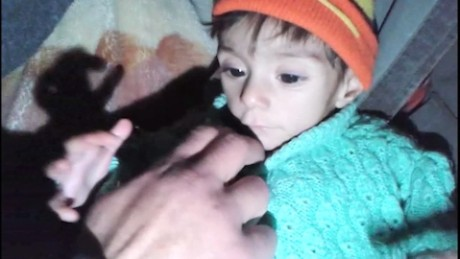 Disturbing scenes from Madaya, Syria
