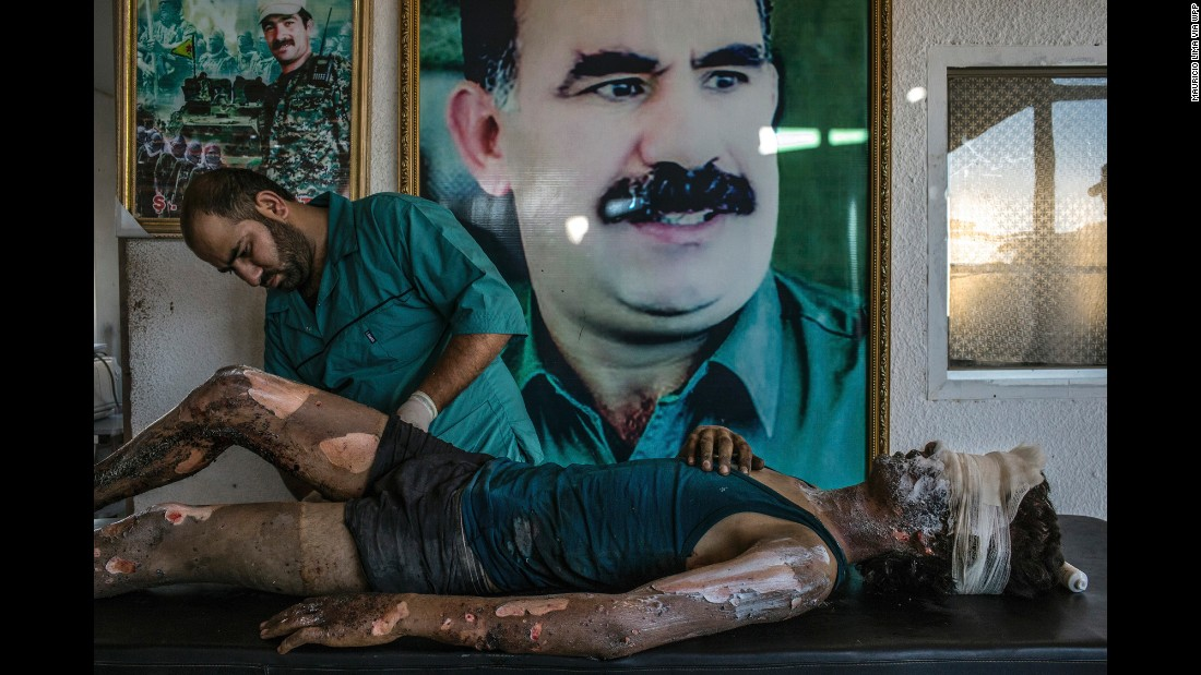A doctor rubs ointment on the burns of a 16-year-old ISIS fighter named Jacob at a hospital compound on the outskirts of Hasaka, Syria, on August 1. Behind them is a poster of Abdullah Ocalan, the jailed leader of the Kurdistan Workers' Party,