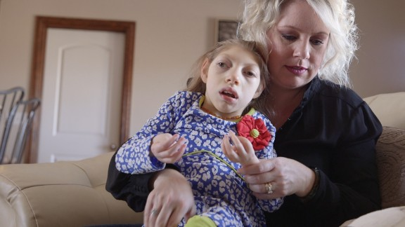 Gwen Hartley holds her daughter Claire, who has microcephaly.
