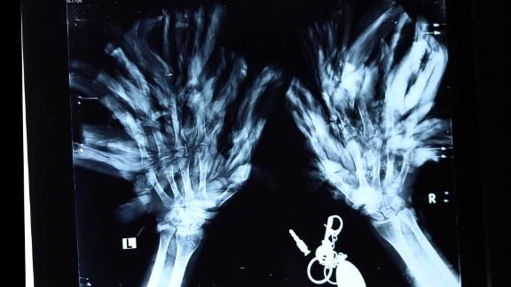 An x-ray image of Bajandra