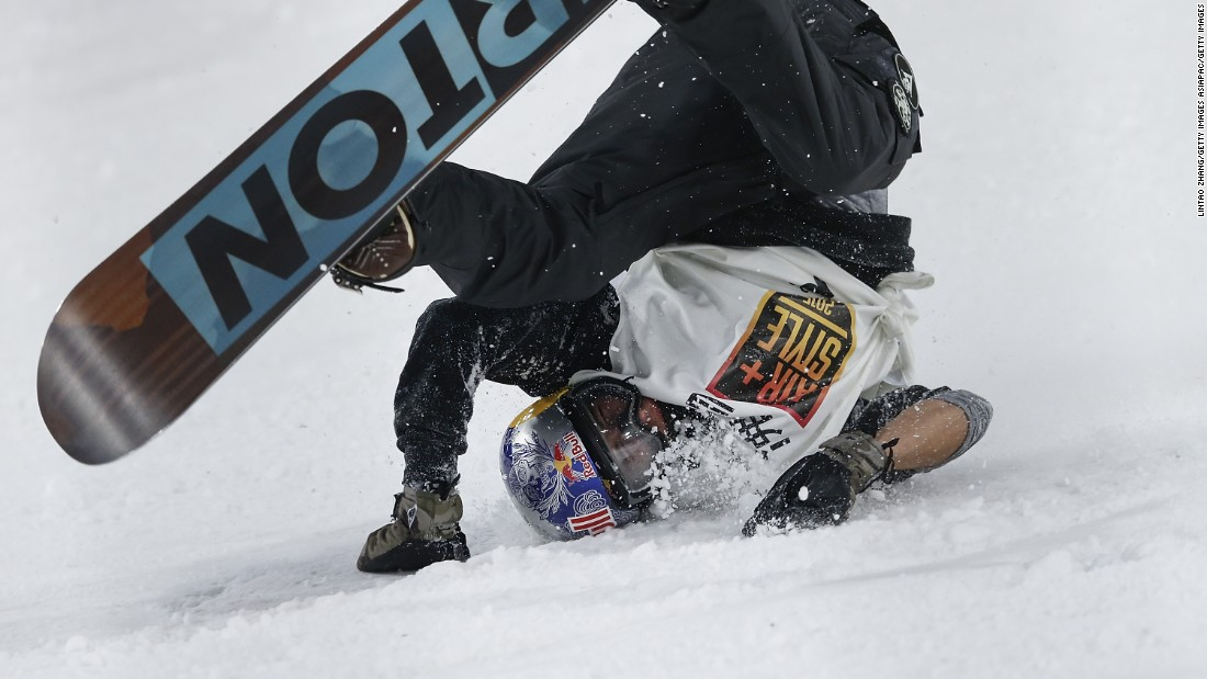Mark McMorris of Canada (seen crashing at the Air + Style Beijing 2015 Snowboard World Cup) recently suffered a broken femur while attempting a frontside 1440 triple cork at the Air + Style event in Los Angeles.