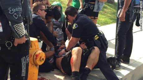 KKK, counterprotesters clash in California; 5 hurt and 13 arrested