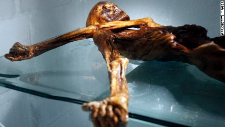 Otzi's left arm cover his throat. This was one of the problems researchers had to overcome.