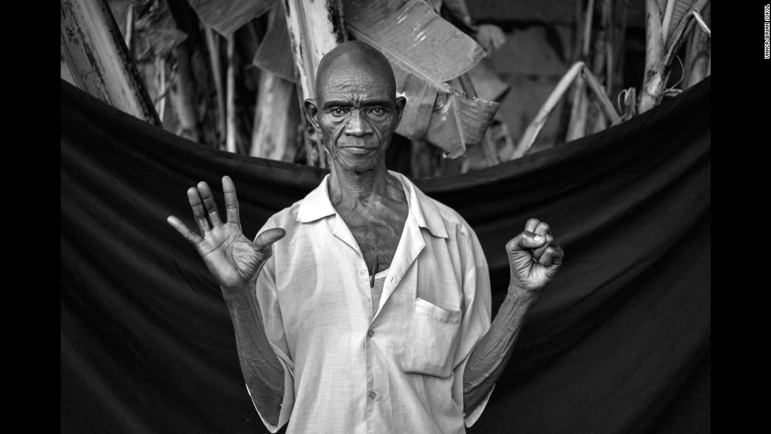"Edward is unsure of exactly when his family left Angola, but their journey to Zaire is imprinted indelibly in the 73-year-old's memory. ""My mother was carrying clothes and a bag of cassava,"" he recalls. ""I kicked a tree when we were walking through the forest, and the toe dried up after and fell off."" Today Edward is happy at the prospect of returning home, and says his bare hands would be the thing he would bring back to Angola. ""I need these,"" he says, ""just these."""