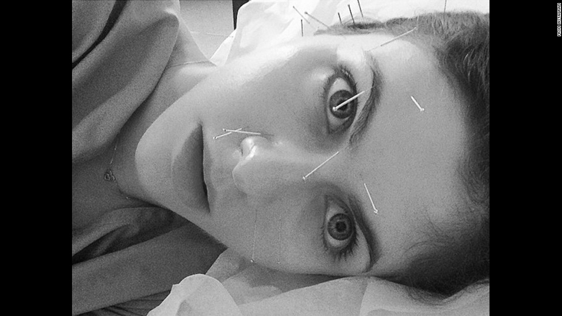 "Actress Alexandra Daddario titled this selfie ""Acupuncture Frankenstein: A Terrific Clap of Thunder"" when <a href=""https://www.instagram.com/p/BC-g7iutLec/?taken-by=alexannadaddario&hl=en"" target=""_blank"">she posted it to Instagram</a> on Tuesday, March 15."