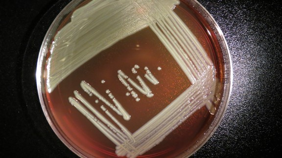 Elizabethkingia anophelis grows on a blood agar plate. It doesn