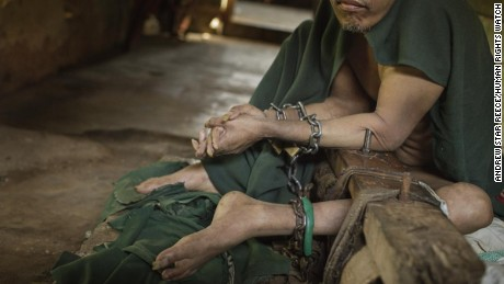 Living in chains: In Indonesia, mentally ill kept shackled in filthy cells