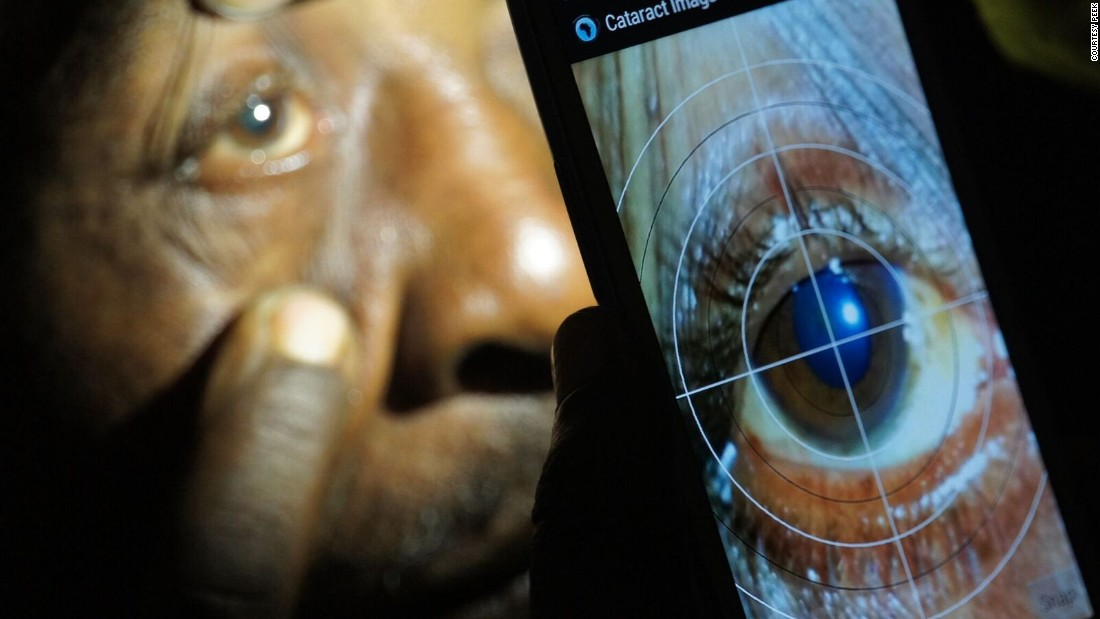 A smartphone app developed by Peek Vision (Portable Eye Examination Kit) has been used in Kenya, Botswana and India to test patients who would otherwise find getting proper eye care difficult.