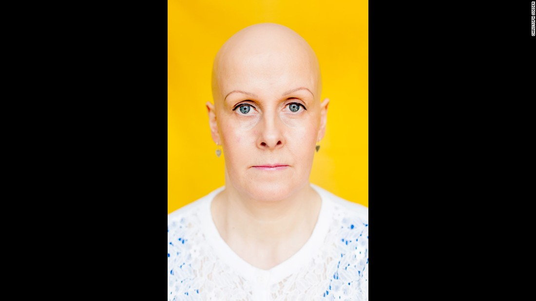 "Gwennan runs an alopecia support group in Cardiff, Wales. ""I tried wigs, and for a couple of years it was a confidence tonic to me,"" she told Soeder. ""I felt happier and more able to face the world, because I was normal again. No one noticed me as I blended in with everyone else. Unfortunately for me, this was short-lived. I am not saying that this is necessarily true for others. Wigs work for so many people, but for me it led me to believe that I was hiding my identity."""