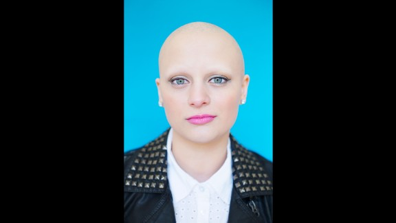 Gabrielle was diagnosed with alopecia when she was 4 years old. She hadn't met anyone else affected by the condition until this project, when she met Emily P. (from photo No. 3).