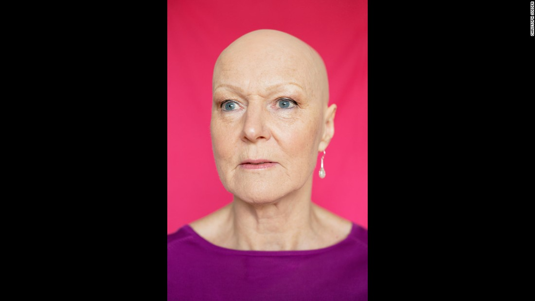 """In my 40s, I started to lose (my hair) -- just a small patch about the size of a 10p coin which grew back,"" Sally told Soeder. ""Then another, then a bigger patch. The doctor and hairdresser said not to worry, worrying makes it worse. For 15 years, I spent a fortune on creams, shampoos and pills to make it grow -- but nothing worked for long. And when it did grow back, it was pure white. So hair dye became my best friend. Life became a constant struggle to hide the bald bits. I felt at war with my hair."""