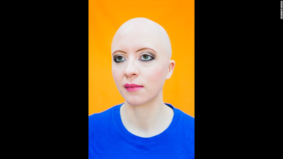 Victoria lost her hair when she was 21. She founded the PrettyBald organization to provide the support that she couldn't find.