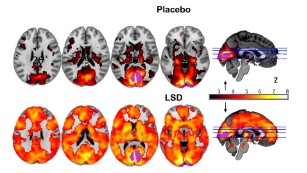 This is your brain on LSD, literally