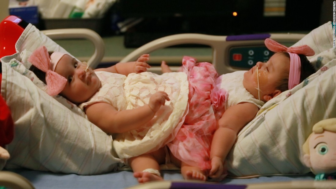 Conjoined Twins Fast Facts – CNN