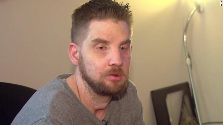 face transplant recipient finally speaks cnn
