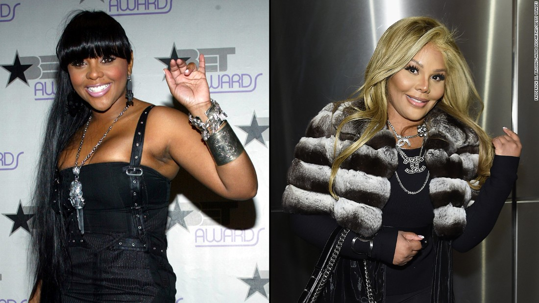 Lil' Kim, left, at a 2003 BET event, has stirred controversy over her changing appearance in the past, but these days she's unrecognizable -- and people are talking.