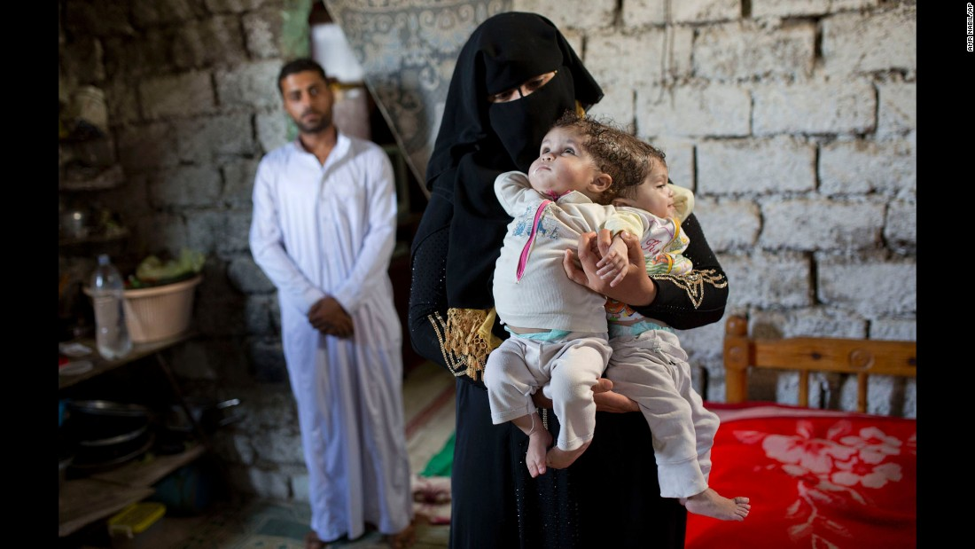 Fatma Yousry holds her conjoined twins -- Menna, left, and Mai -- at their home in Sadat City, Egypt, on Friday, April 22. Yousry and her husband, Islam Hassan, said they had been unable to find treatment for their daughters.