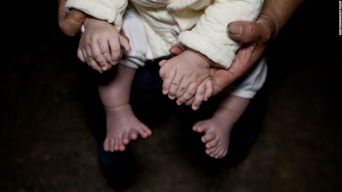 "A woman in Yueyang, China, shows the hands and feet of her 3-month-old son, Hong Hong, <a href=""http://www.cnn.com/2016/05/04/health/chinese-boy-31-fingers-toes-irpt/index.html"" target=""_blank"">who was born with 15 fingers and 16 toes.</a> He also has two palms on each hand and no thumbs. Doctors diagnosed the boy with polydactylism, a fairly common condition that occurs in humans, dogs and cats. Hong Hong's parents are trying to raise enough money so he can undergo an operation."