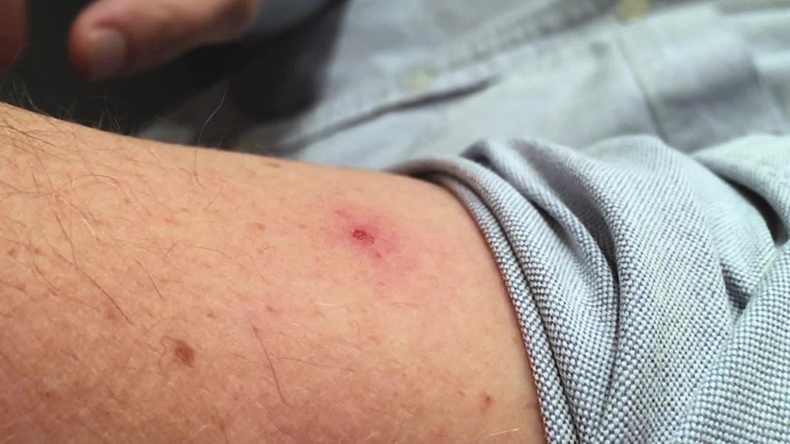 Mosquito Biting A Human