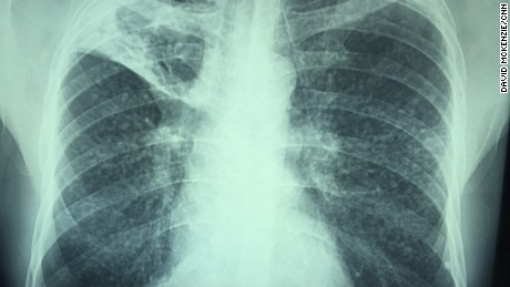 The X-ray of a miner with terminal silicosis showing dust particles embedded deep in the lungs.