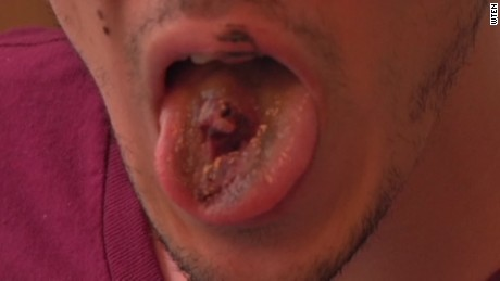 hole ripped in vaping mans tongue pkg _00010811