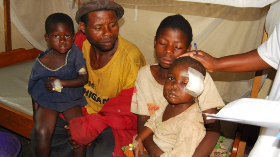 An injured child receives medical care at a hospital in the North Kivu province in February 2016. He was among the survivors of attacks in which around 15 people of the Nande ethnic minority were killed by men armed with knives in the Miriki area of Lubero, on January 6 and 7, 2016.
