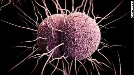 Gonorrhea rates in Australia up 63% in 5 years, data show