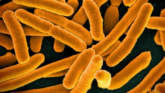 The bacteria Escherichia coli (E. coli) naturally occurs in your gut, and while most strains are harmless, some can cause severe foodborne diseases, with symptoms ranging from fever, nausea and vomiting to bloody diarrhea. The infections are transmitted by eating or drinking contaminated food and water.   Multi-drug resistance in E. coli has been increasingly reported in urinary tract infections (UTIs). According to the WHO, the most widely used oral treatment  -- fluoroquinolones -- are also becoming ineffective. A U.S woman was reported to be infected with a rare kind of E. coli infection that is resistant to antibiotics, even one used as a last resort.
