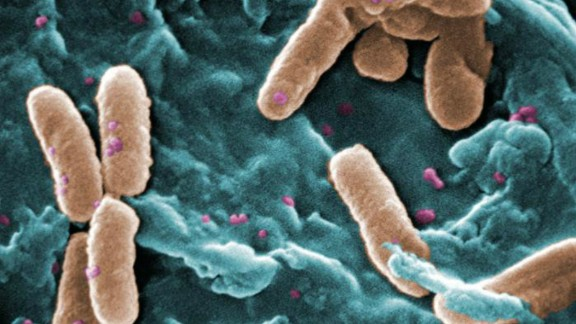 Pseudomonas bacteria can be deadly for patients who are in critical care. According to CDC it