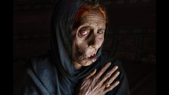Naiz Bibi, blind in one eye, lost seven members of her family in an airstrike, including her husband, daughter and two sons. She is photographed here in April 2015.