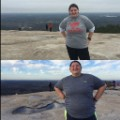 04 bariatric surgery 0602