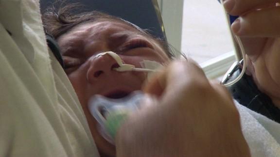 zika baby orig_00002003.jpg