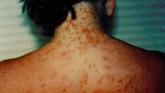 Sea lice, also known as seabather