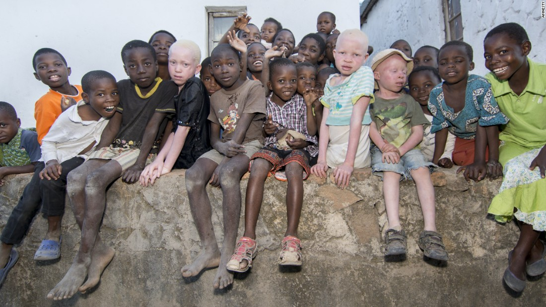 Hunting For Humans African Albinos Live In Fear Cnn