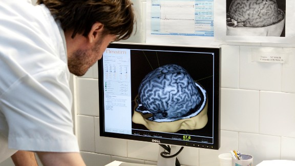 Those given EGCG  performed better in tests for visual memory, the ability to control responses and the ability to plan or make calculations. Brain scans revealed improvements in connectivity between nerve cells and improvements were also seen in areas of the brain relating to language.