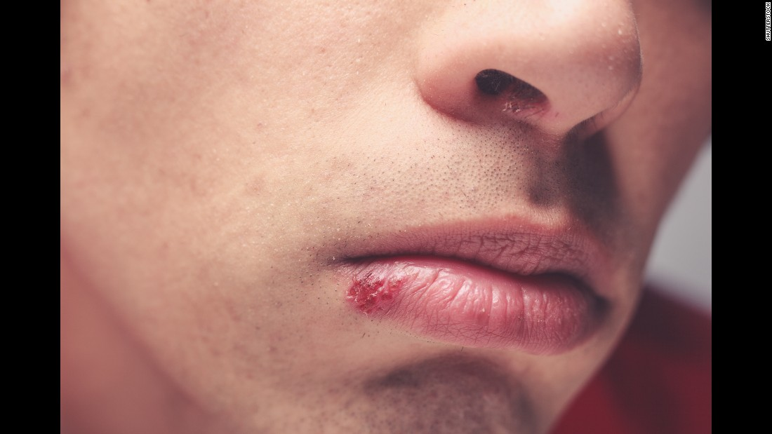 Five diseases you can get from kissing