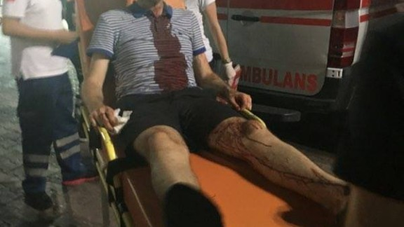 One attendee was struck on the head and required medical attention but told CNN it looked a lot worse than it was.