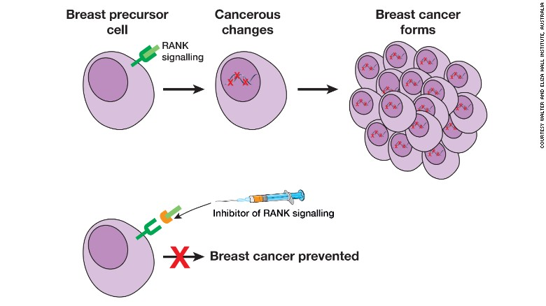 breast cancer gene brac