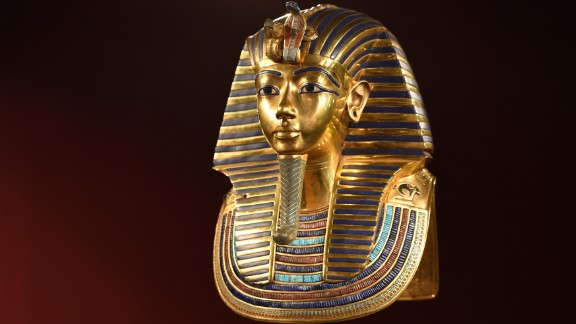 A modern-day CT scan and DNA analysis of the mummified body of the Egyptian Pharaoh Tutankhamun revealed the 19-year-old was not in good health. He had a club foot; a broken leg; an overbite; and Kohler's disease, a rare bone disorder.