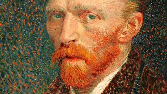 Despite limited medical evidence, at least 150 doctor scholars have tried to diagnose painter Vincent Van Gogh (1853-90). Some argue that he suffered from temporal lobe epilepsy. Others suggest that he was bipolar or struggled with depression.