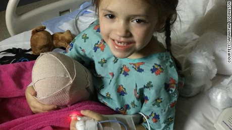 Katie had her last operation -- to amputate her leg -- in December 2015.
