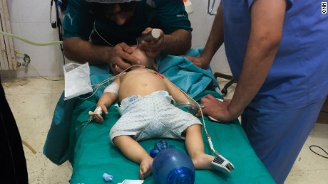 Doctors at the hospital treat an eight-month-old boy suffering from shrapnel wounds; he survived.