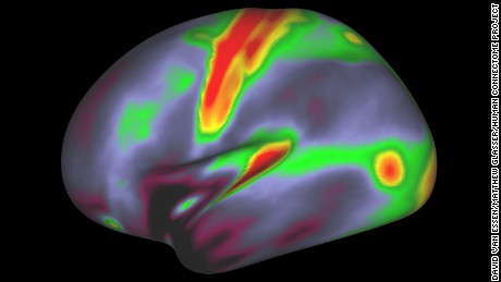 A 180-area multimodal human cortical parcellation on inflated left and right hemisphere surfaces.