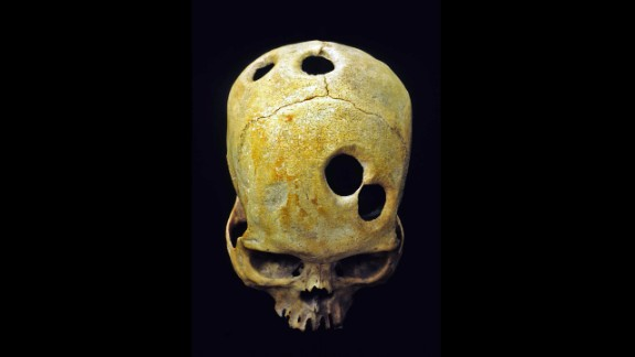 An ancient surgeon in Peru probably used a sharp tool to carefully groove the perfect circles in this Incan skull. Healed bone around the edge of the holes indicates the patient was alive during the surgery and probably survived. Scholars can