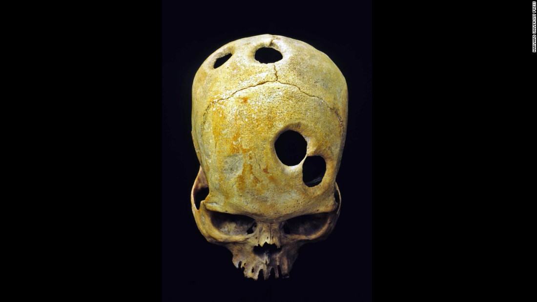 An ancient surgeon in Peru probably used a sharp tool to carefully groove the perfect circles in this Incan skull. Healed bone around the edge of the holes indicates the patient was alive during the surgery and probably survived. Scholars can't explain the purpose behind the mysterious multiple openings.