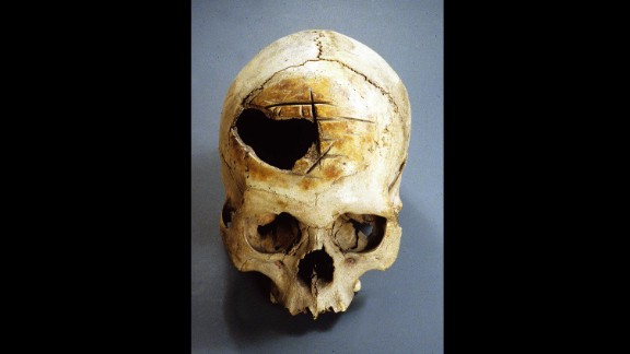 The deep, straight cuts in this Peruvian skull were made by rocking a blade back and forth. Their varying placement suggests the surgery was poorly executed and unsuccessful.