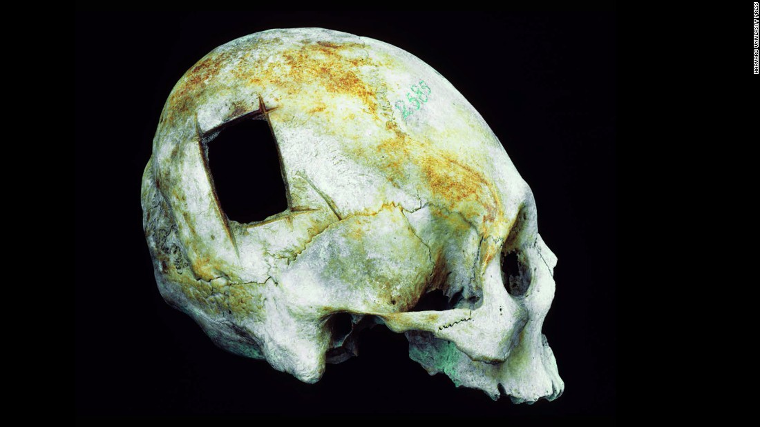 Rectangular holes like the one in this Peruvian skull could be made rapidly by rocking a sharp tool down through the bone. The method was faster and riskier than scraping or grooving a hole, since it increased the chances of tearing directly into the brain with the blade.